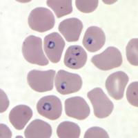 malaria smear